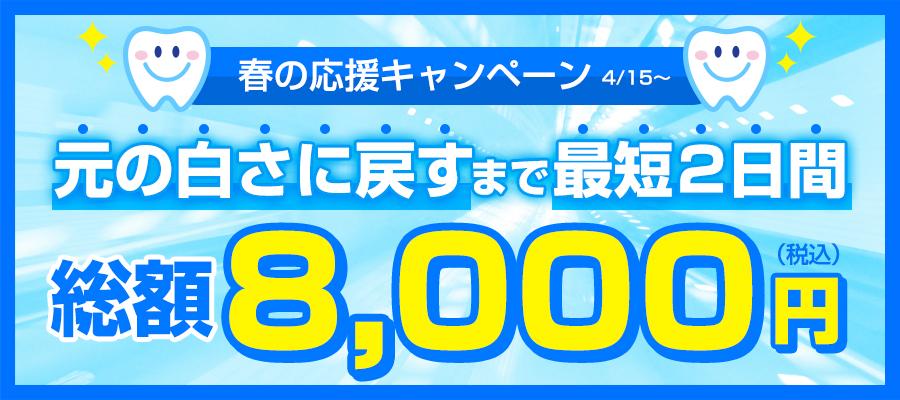 [春の応援キャンペーン]元の白さに戻すまで最短2日間総額8,000円(税込)